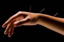 acupunture - sos physio