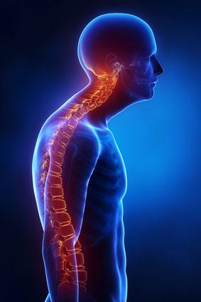 postural disorder