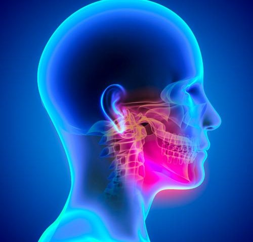 Temporomandibular Joint Disorder (TMJ)