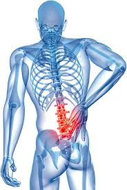 Physical therapy vs Medication for low back pain