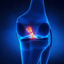Physical therapy post Anterior Cruciate Ligament (ACL) surgery