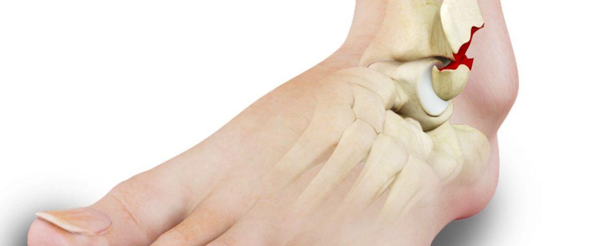 Bimalleolar fracture